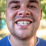Chipped or Broken Tooth Treatment & Repair